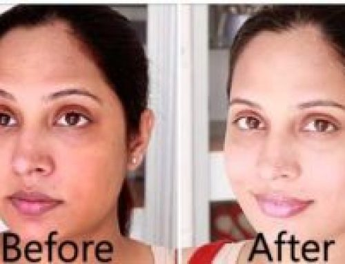 Skin Whitening Injections in Lahore